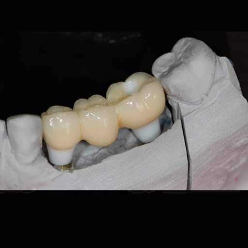 Other missing tooth solutions
