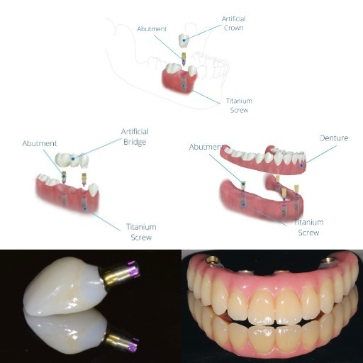 Restoring your smile with dental implants