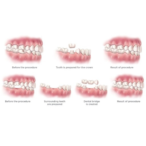 Restoring a Smile with Crowns and Bridges