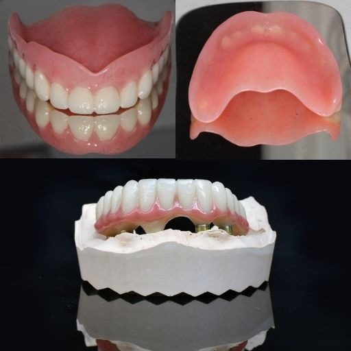 Full Upper Denture and Lower Implant-Retained Denture From $10,000