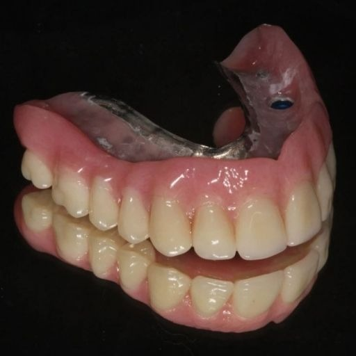 Upper Implant-Retained Denture From $15,000