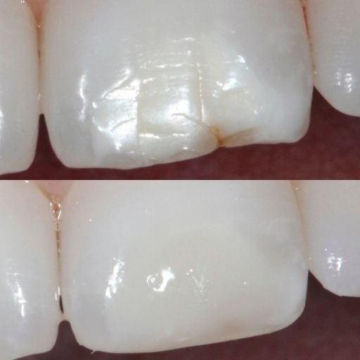 How Tooth Bonding Works