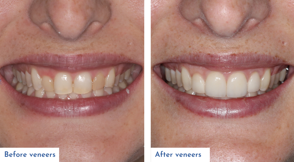 Before and after veneers treatment provided by Dr Dave Norcross
