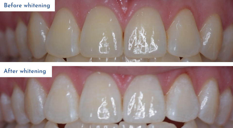 Before and after teeth whitening treatment provided by Dr Josefina Guimaraes