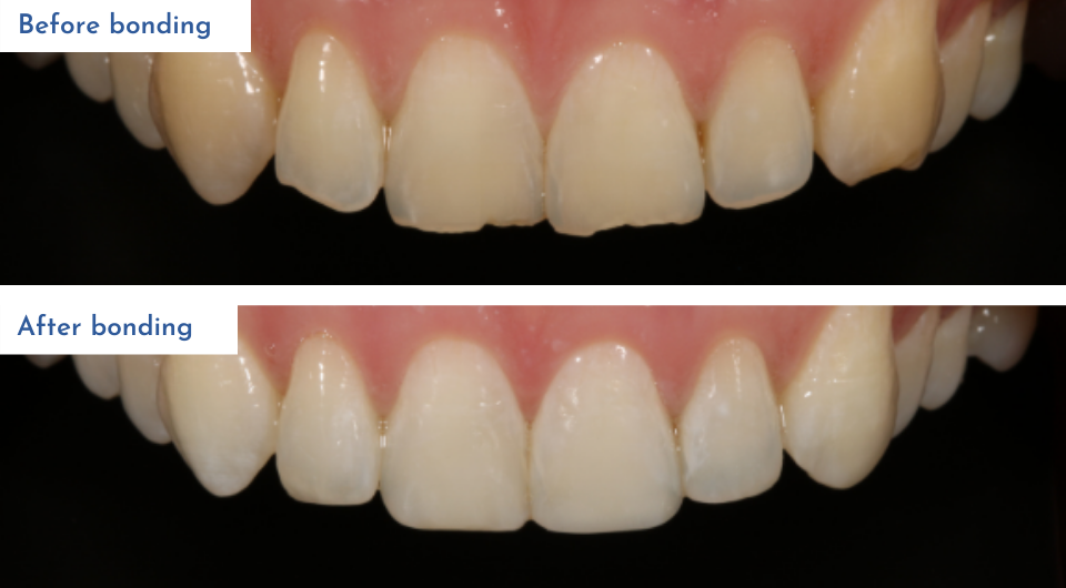 Treatment includes bonding and whitening