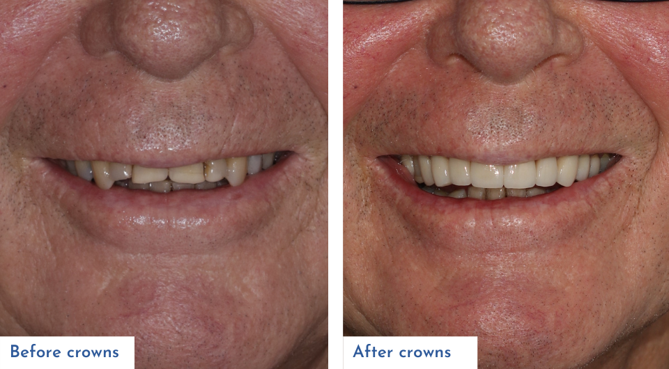 Before and after crowns treatment provided by Dr Lewis Moore