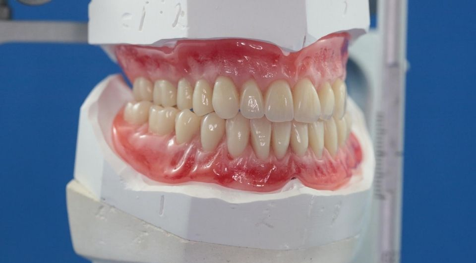 Why do dentures affect your diet?