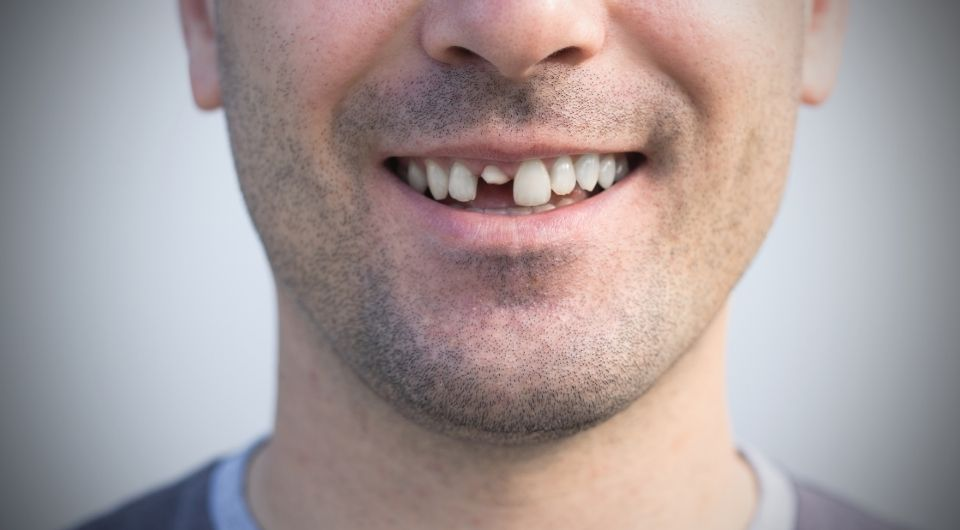 How to preserve chipped or cracked teeth